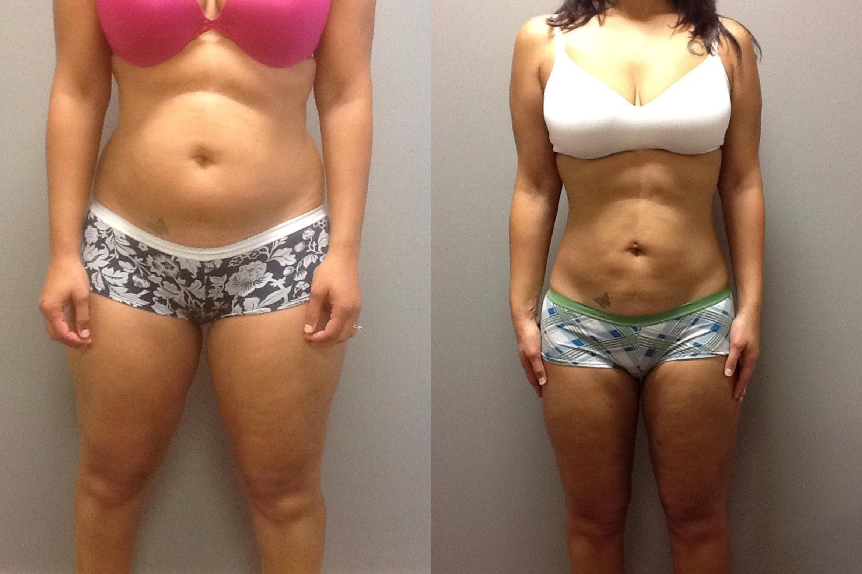 eget fett etter fettsuging